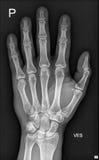 ιατρική ακτίνα Χ χεριών λεπτομέρειας Στοκ εικόνα με δικαίωμα ελεύθερης χρήσης