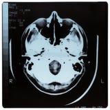 ιατρική ακτίνα X Στοκ εικόνες με δικαίωμα ελεύθερης χρήσης