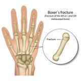 Ιατρική διανυσματική απεικόνιση σπασίματος χεριών κόκκαλων μπόξερ διανυσματική απεικόνιση