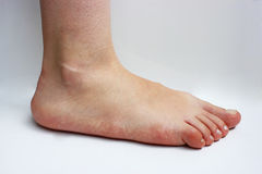 Ιατρική, επίπεδα πόδια, tarsoptosia, θηλυκό ποδιών που απομονώνεται Στοκ εικόνα με δικαίωμα ελεύθερης χρήσης