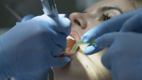 Ιατρική διαδικασία οδοντιάτρων των δοντιών που γυαλίζουν με τον καθαρισμό από την οδοντική κατάθεση και odontolith Στοκ Φωτογραφίες