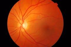 Ιατρική φωτογραφία βυθών του macula στοκ εικόνα
