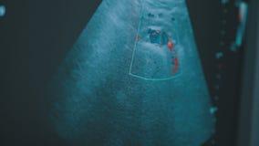 ιατρικός υπέρηχος ανίχνευσης εγκυμοσύνης εξοπλισμού διαγνώσεων Μηχανή ηχούς απόθεμα βίντεο