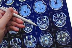 Ιατρός που δείχνει με τη μάνδρα τον εγκέφαλο poblem στο MRI Στοκ εικόνες με δικαίωμα ελεύθερης χρήσης