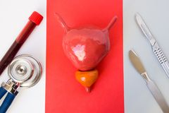 Ιδέα της διάγνωσης και του προστάτη φωτογραφιών και χειρουργική επέμβαση κύστεων urology Η μορφή του προστάτη και της κύστης βρίσ στοκ φωτογραφίες