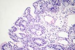 Ιστοπαθολογία των ρινικών polyps στοκ εικόνα με δικαίωμα ελεύθερης χρήσης