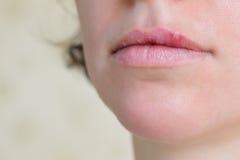 Ιός έρπη στα θηλυκά χείλια Στοκ Εικόνες