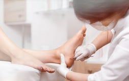 Κάλος και καλαμπόκι στιλβωτικής ουσίας γιατρών Profeesional στα πόδια του πελάτη στοκ φωτογραφίες με δικαίωμα ελεύθερης χρήσης