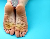 Καθαρίζοντας πόδια ποδιών με ένα πριόνι ή μια βούρτσα Καθαρισμός των ποδιών του μύκητα στοκ φωτογραφία με δικαίωμα ελεύθερης χρήσης