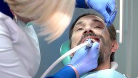 Καθαρίζοντας δόντια οδοντιάτρων απόθεμα βίντεο