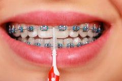 Καθαρίζοντας δόντια χαμόγελου γυναικών με τα στηρίγματα στοκ φωτογραφίες