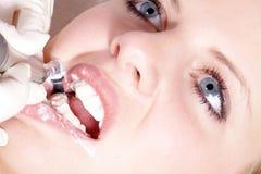 καθαρισμός οδοντικός Στοκ φωτογραφίες με δικαίωμα ελεύθερης χρήσης