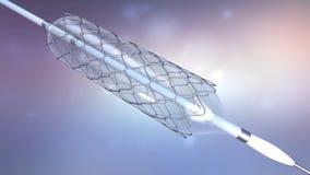Καθετήρας για τη stent εμφύτευση για την υποστήριξη της κυκλοφορίας αίματος στα αιμοφόρα αγγεία διανυσματική απεικόνιση