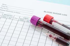 Καθημερινή δοκιμή κούτσουρων ζάχαρης αίματος και αίμα δειγμάτων στο σωλήνα και το syrin στοκ εικόνες