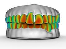 Κακή έννοια ανάλυσης δοντιών απεικόνιση αποθεμάτων