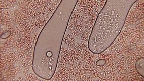 Κανάλι 100x κυττάρων αίματος Αιμοπετάλια αίματος που βλέπουν μια μικρή διάβαση στην ενίσχυση 100x με την ενίσχυση ενός αλόγονου απόθεμα βίντεο