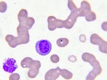 Κανονικά λευκά κύτταρα αίματος στοκ φωτογραφία