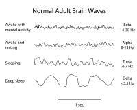 Κανονικά κύματα EEG εγκεφάλου Στοκ φωτογραφία με δικαίωμα ελεύθερης χρήσης