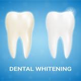 Καπλαμάς δοντιών, λεύκανση δοντιών, που λευκαίνει την οδοντόπαστα σε ένα υπόβαθρο Ρεαλιστική διανυσματική απεικόνιση Ελεύθερη απεικόνιση δικαιώματος