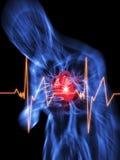 καρδιά επίθεσης Στοκ Εικόνα