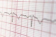 Καρδιογράφημα στοκ εικόνα με δικαίωμα ελεύθερης χρήσης