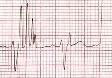 Καρδιογράφημα στοκ εικόνες με δικαίωμα ελεύθερης χρήσης