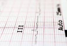 Καρδιογράφημα στοκ εικόνες