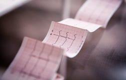 Καρδιογράφημα που τυπώνεται ιατρικό σε χαρτί για τον πίνακα στοκ εικόνες με δικαίωμα ελεύθερης χρήσης
