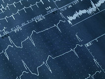 καρδιογράφημα Στοκ Φωτογραφία