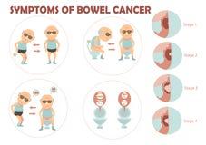 Καρκίνος εντέρων διανυσματική απεικόνιση