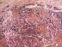 Καρκίνος συκωτιού ενός ανθρώπου Στοκ φωτογραφίες με δικαίωμα ελεύθερης χρήσης