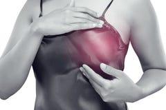 Καρκίνος του μαστού μόνος - έλεγχος Στοκ Φωτογραφίες