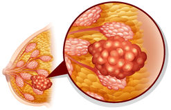 Καρκίνος του μαστού στο λευκό ελεύθερη απεικόνιση δικαιώματος