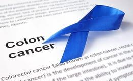 Καρκίνος του παχέος εντέρου στοκ εικόνα με δικαίωμα ελεύθερης χρήσης
