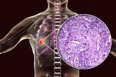 Καρκίνος του πνεύμονα, απεικόνιση και φωτογραφία κάτω από το μικροσκόπιο διανυσματική απεικόνιση
