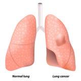 Καρκίνος του πνεύμονα Στοκ εικόνα με δικαίωμα ελεύθερης χρήσης