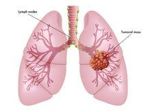 Καρκίνος του πνεύμονα Στοκ Φωτογραφία