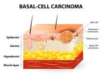 Καρκίνωμα βασικός-κυττάρων ή βασικός καρκίνος κυττάρων ελεύθερη απεικόνιση δικαιώματος
