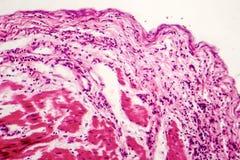 Καρκίνωμα κυττάρων δαχτυλιδιών Signet στοκ φωτογραφία