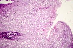 Καρκίνωμα κυττάρων Squamous Στοκ εικόνες με δικαίωμα ελεύθερης χρήσης