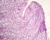 Καρκίνωμα κυττάρων Squamous Στοκ Φωτογραφία