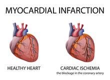 Καρδιά έμφραγμα μυοκαρδιακό ελεύθερη απεικόνιση δικαιώματος