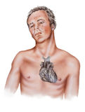 Καρδιά - συμπτώματα επίθεσης καρδιών Στοκ εικόνες με δικαίωμα ελεύθερης χρήσης