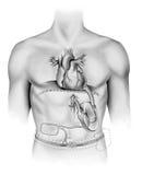 Καρδιά - τεχνητή αντλία Στοκ εικόνες με δικαίωμα ελεύθερης χρήσης