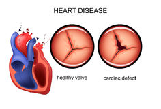 Καρδιακή ατέλεια καρδιολογία απεικόνιση αποθεμάτων