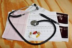 Καρδιογράφημα, θυροειδής υπερήχου, στηθοσκόπιο και χάπια στοκ εικόνα με δικαίωμα ελεύθερης χρήσης