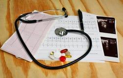 Καρδιογράφημα, θυροειδής υπερήχου, στηθοσκόπιο και χάπια στοκ εικόνες με δικαίωμα ελεύθερης χρήσης