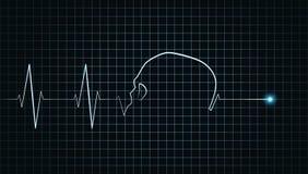 Καρδιογράφημα στάσεων κτύπου της καρδιάς Στοκ φωτογραφία με δικαίωμα ελεύθερης χρήσης