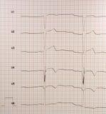 καρδιογράφημα στοκ φωτογραφίες