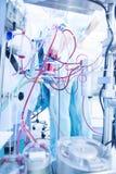 Καρδιοπνευμονική παράκαμψη στην καρδιακή χειρουργική επέμβαση Στοκ φωτογραφίες με δικαίωμα ελεύθερης χρήσης